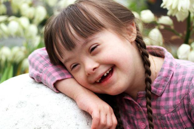 Como lidar com crianças com síndrome de Down?