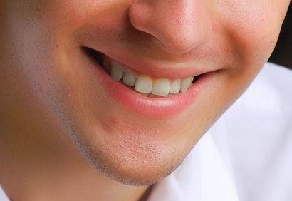 curso de est�tica do tratamento periodontal...